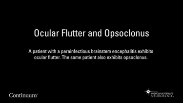 Ocular Flutter and Opsoclonus