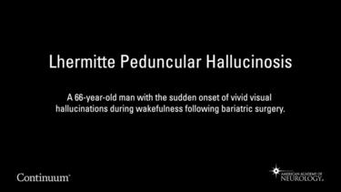 Lhermitte Peduncular Hallucinosis