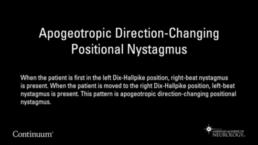 Apogeotropic direction-changing positional nystagmus