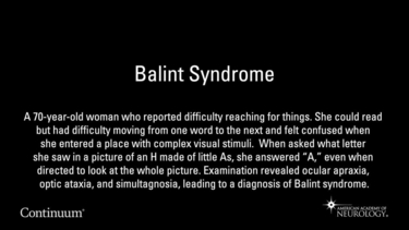 Balint Syndrome