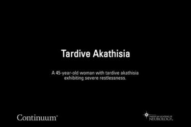Tardive akathisia