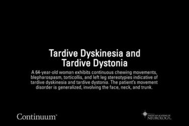 Tardive dyskinesia and tardive dystonia