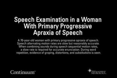 Speech examination in a woman with primary progressive apraxia of speech.