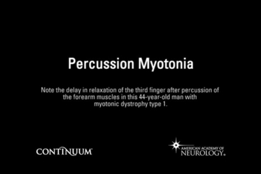 Percussion Myotonia