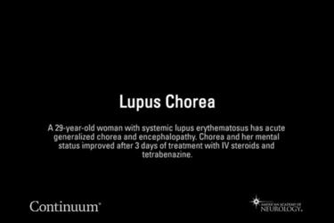 Lupus chorea