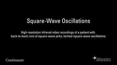 Square-Wave Oscillations