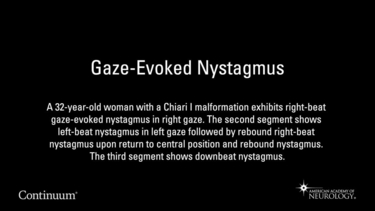 Gaze-Evoked Nystagmus