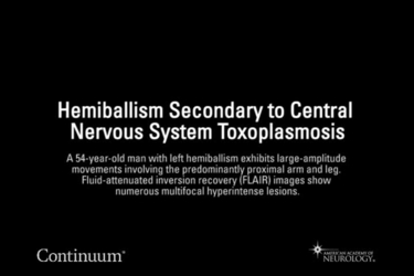 Hemiballism secondary to central nervous system toxoplasmosis