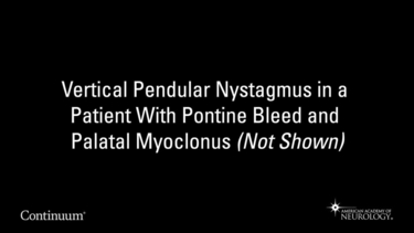 Vertical pendular nystagmus in a patient with pontine bleed and palatal myoclonus (not shown)