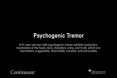 Psychogenic tremor
