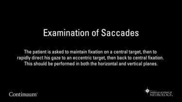 Examination of Saccades