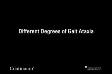 Different degrees of gait ataxia