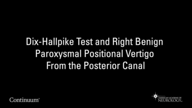 Dix-Hallpike test and right benign paroxysmal positional vertigo from the posterior canal