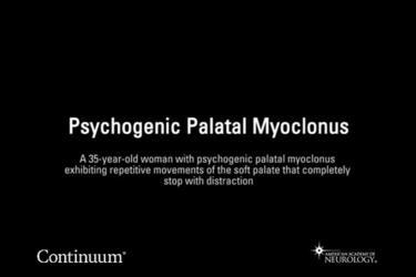 Psychogenic palatal myoclonus