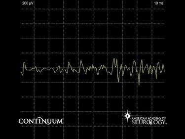 Neuromyotonia