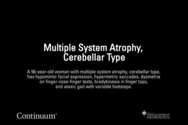 Multiple system atrophy, cerebellar type