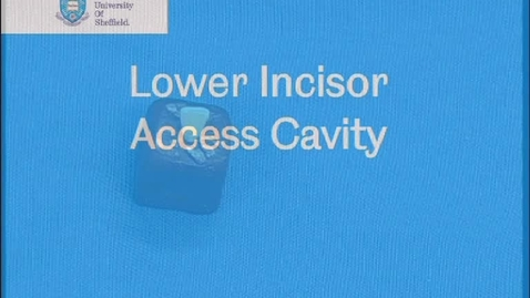 Thumbnail for entry Lower incisor access cavity