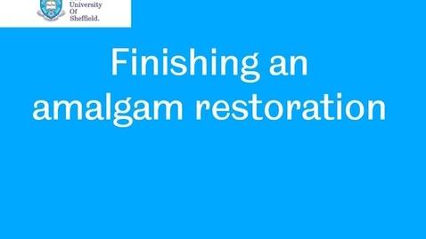 Thumbnail for entry Amalgam finishing
