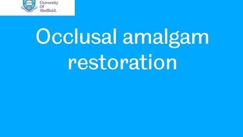 Thumbnail for entry Occlusal amalgam restoration