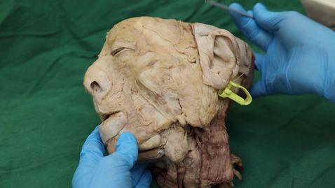 Thumbnail for entry External carotid and submandibular triangle