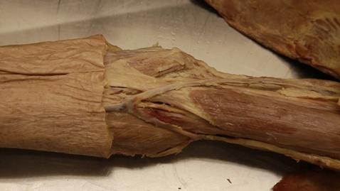 Thumbnail for entry 17-H antecubital fossa