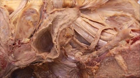 Thumbnail for entry 26-G ureter and vas deferens