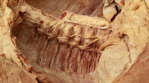 Thumbnail for entry 5-G Splanchnic nerves