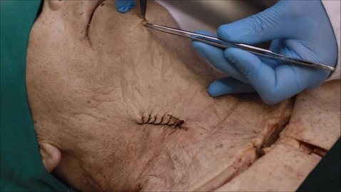 Thumbnail for entry 6-B disection of superficial muscles