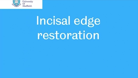 Thumbnail for entry Class IV Incisal Edge Restoration video
