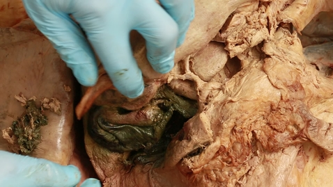 Thumbnail for entry 13-F duodenal ulcer