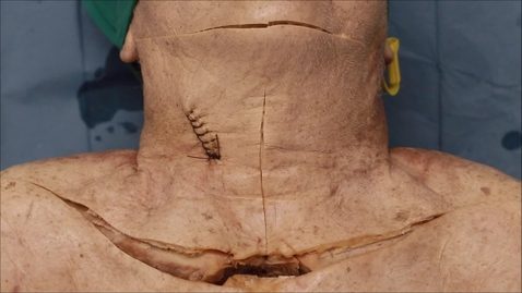 Thumbnail for entry 6-E anterior neck