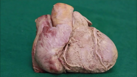 Thumbnail for entry 4-H open right ventricle