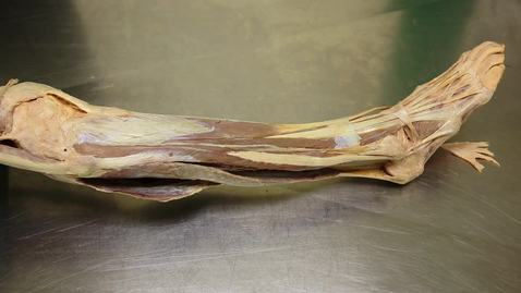 Thumbnail for entry 34-A Gastrocnemius and plantaris