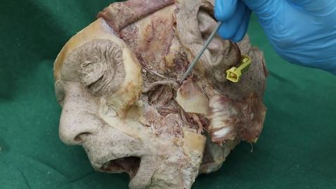 Thumbnail for entry Temporomandibular cartilagenous disc