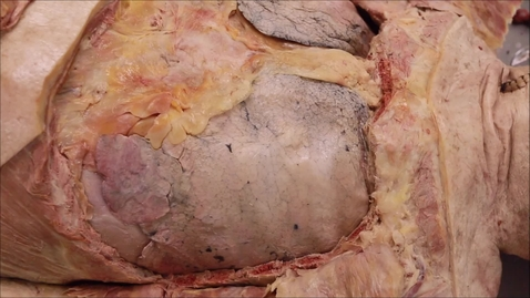 Thumbnail for entry 2-H disection hilum of left lung.mp4