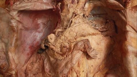 Thumbnail for entry 14-D pancreas