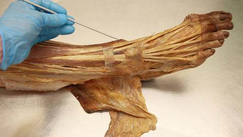 Thumbnail for entry 33-D Anterior compartment of the leg