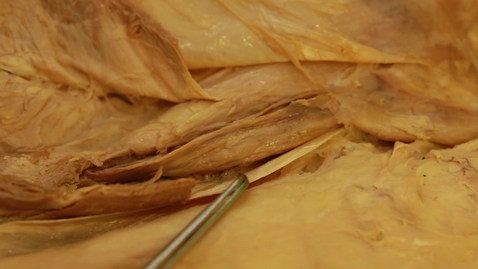 Thumbnail for entry 24-F three layers of spermatic fascia