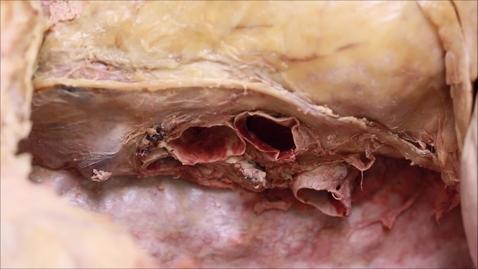 Thumbnail for entry 3-B right vagus nerve