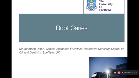 Thumbnail for entry Root Caries Lecture