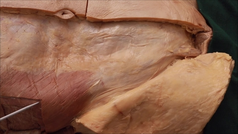 Thumbnail for entry 24-B Disection inguinal canal