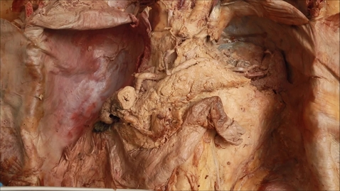 Thumbnail for entry 14-E mobilising the duodenum
