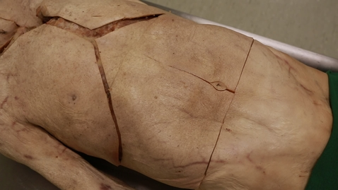 Thumbnail for entry 9-G incisions external oblique