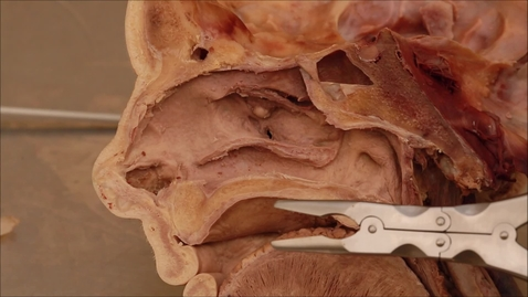 Thumbnail for entry 15-J inside the maxillary sinus