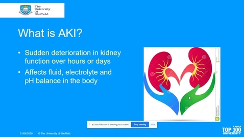Thumbnail for entry Acute Kidney Injury And Fluid Balance-V2