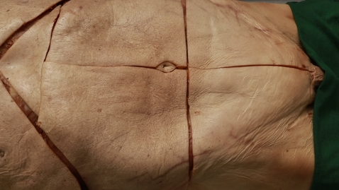 Thumbnail for entry 10-A incisions in muscle wall