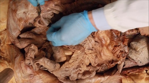 Thumbnail for entry 12-R Removal of bowel from the abdomen