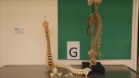 Thumbnail for entry Musculoskeletal Station G.mp4