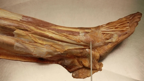 Thumbnail for entry 33-B Lateral compartment of the leg