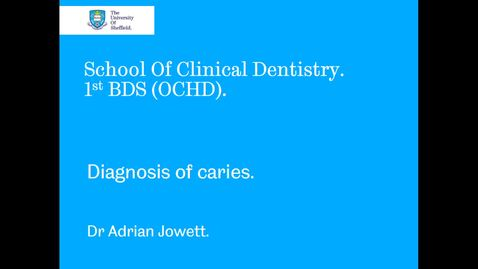 Thumbnail for entry Diagnosis of caries - Quiz